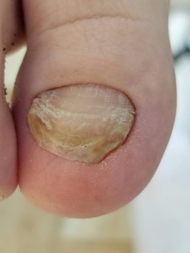 肥厚爪・爪が伸びない矯正
